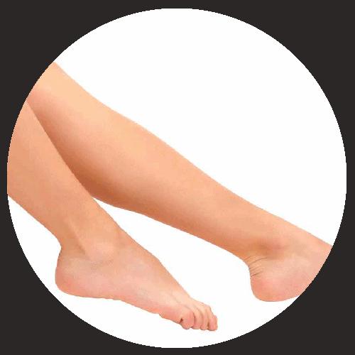 cavigle
